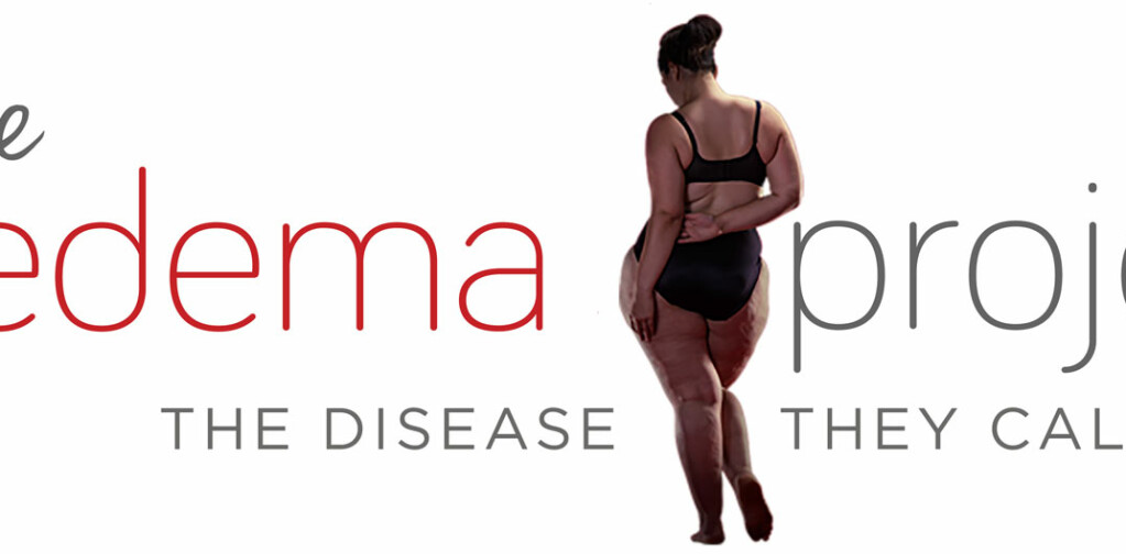 Lipedema: The Disease They Call FAT — Withings